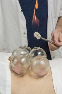 טיפול בכוסות רוח - רפואה סינית מסורתית