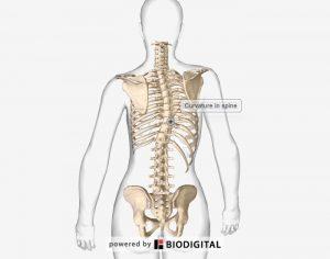 סקוליוזיס - עקמת בגב